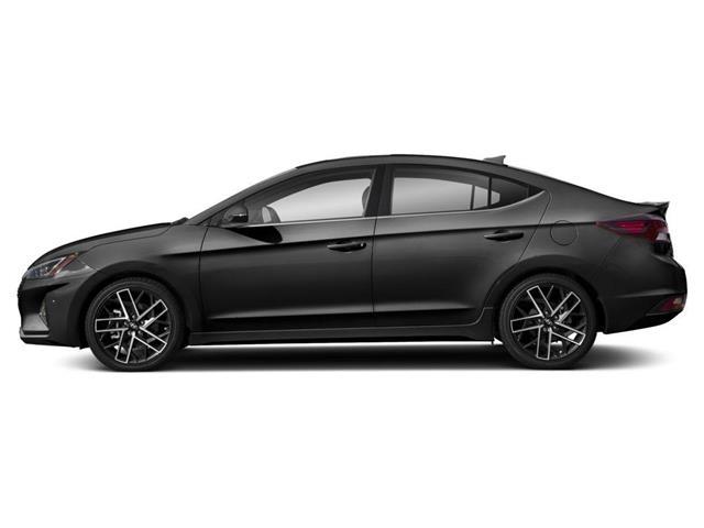 2020 Hyundai Elantra Sport (Stk: 027864) in Whitby - Image 2 of 9