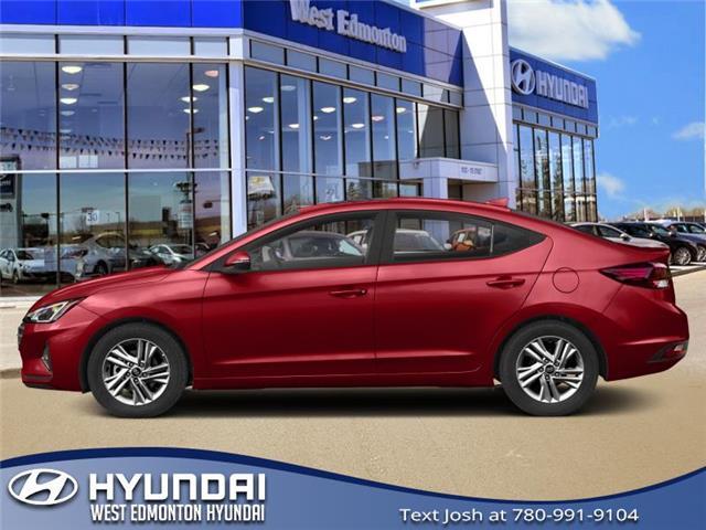 2019 Hyundai Elantra  (Stk: E4842) in Edmonton - Image 1 of 1