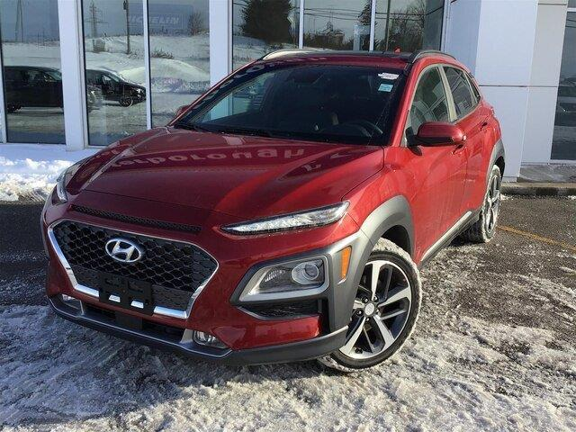 2020 Hyundai Kona Ultimate (Stk: H12363) in Peterborough - Image 1 of 15