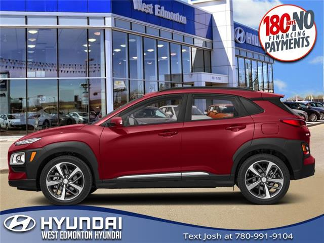 2020 Hyundai Kona 1.6T Ultimate w/Red Colour Pack (Stk: KN01642) in Edmonton - Image 1 of 1