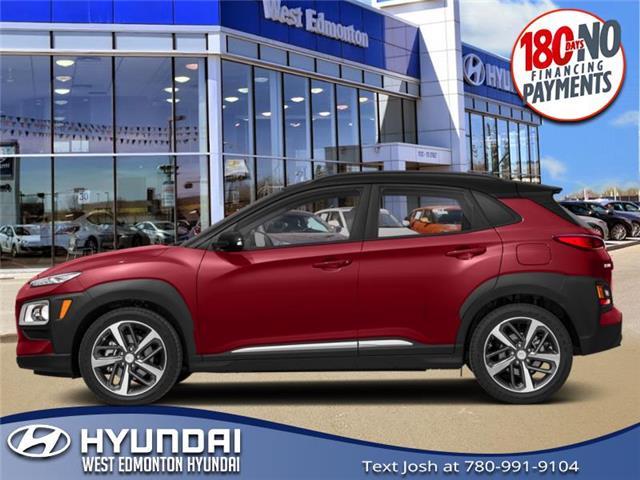 2020 Hyundai Kona 1.6T Trend w/Two-Tone Roof (Stk: KN05506) in Edmonton - Image 1 of 1