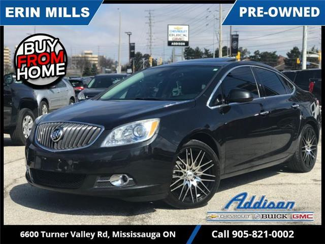 2015 Buick Verano Leather (Stk: UM75365) in Mississauga - Image 1 of 20