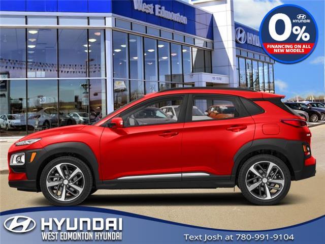 2020 Hyundai Kona 1.6T Trend w/Two-Tone Roof (Stk: KN08671) in Edmonton - Image 1 of 1