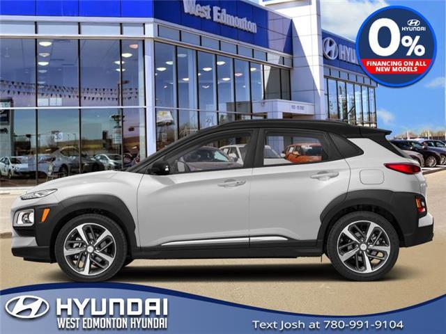 2020 Hyundai Kona 1.6T Trend w/Two-Tone Roof (Stk: KN08755) in Edmonton - Image 1 of 1