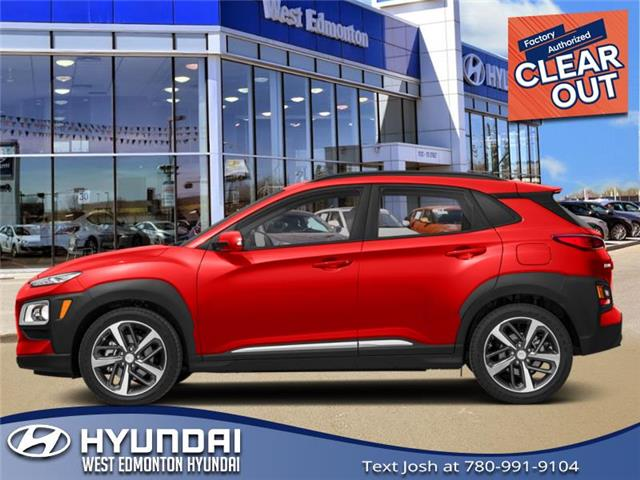 New 2020 Hyundai Kona 2.0L Preferred  - Edmonton - West Edmonton Hyundai