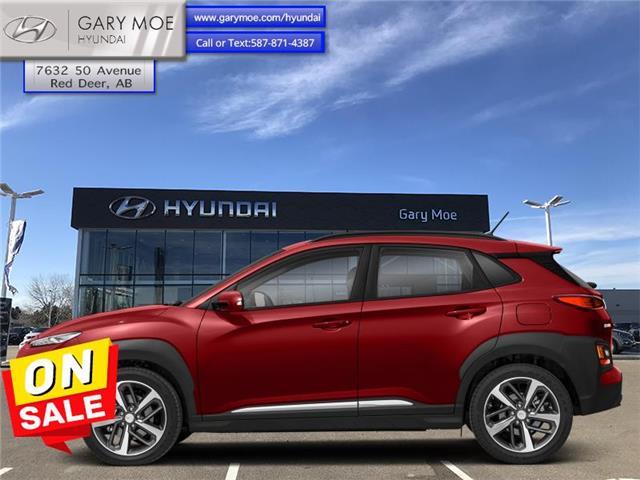 2020 Hyundai Kona 1.6T Ultimate w/Red Colour Pack (Stk: HP8504) in Red Deer - Image 1 of 1