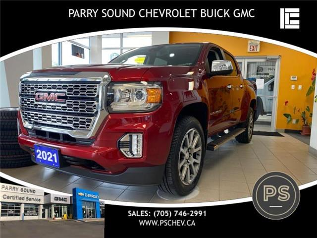 2021 GMC Canyon Denali (Stk: 21-001) in Parry Sound - Image 1 of 14