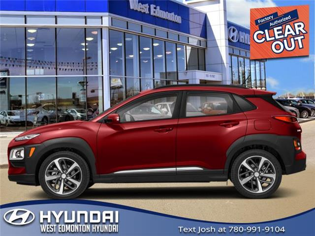 New 2021 Hyundai Kona 1.6T Ultimate w/Red Colour Pack  - Edmonton - West Edmonton Hyundai