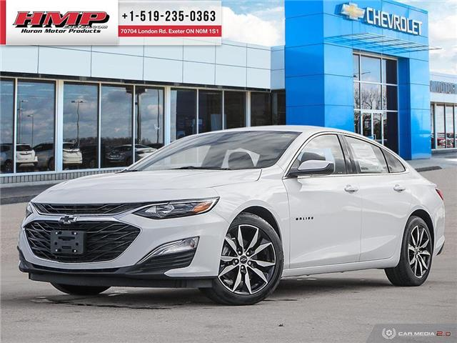 2021 Chevrolet Malibu RS (Stk: 88524) in Exeter - Image 1 of 27