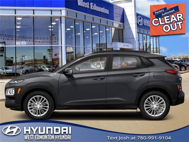 New 2021 Hyundai Kona 2.0L Luxury  - Edmonton - West Edmonton Hyundai