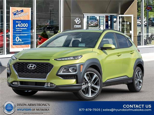2020 Hyundai Kona 1.6T Ultimate w/Lime Colour Pack (Stk: 120-162) in Huntsville - Image 1 of 23