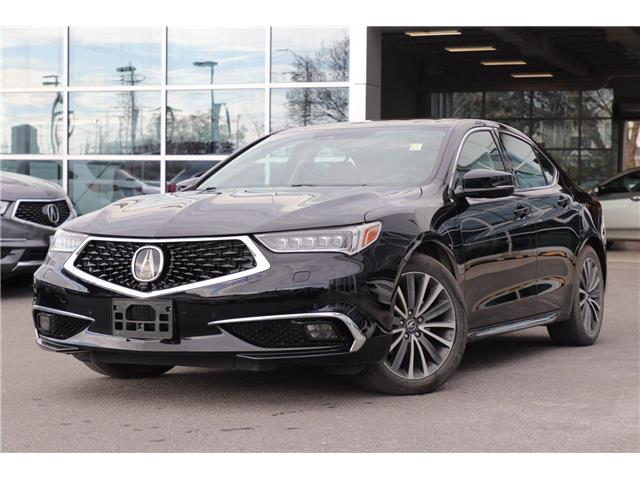 2018 Acura TLX Elite (Stk: P19370) in Ottawa - Image 1 of 27