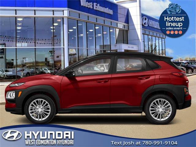 2021 Hyundai Kona 1.6T Urban Edition (Stk: KN13675) in Edmonton - Image 1 of 1