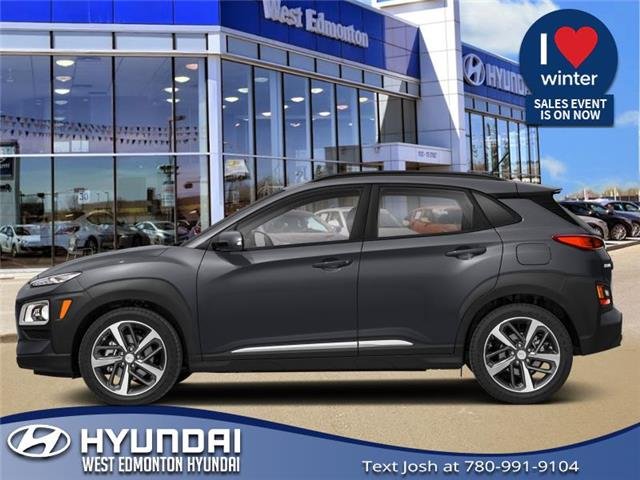 New 2021 Hyundai Kona 1.6T Ultimate  - Edmonton - West Edmonton Hyundai
