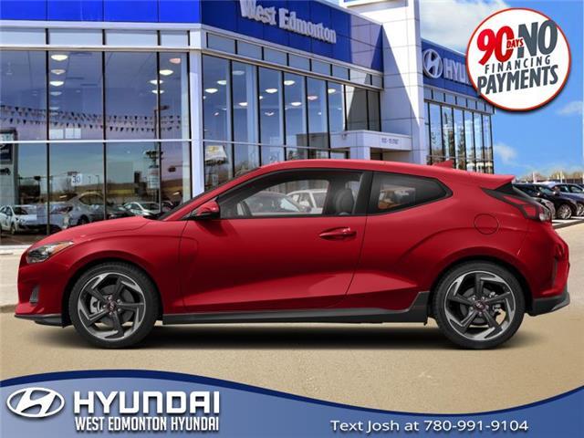 2019 Hyundai Veloster  (Stk: E5343) in Edmonton - Image 1 of 1