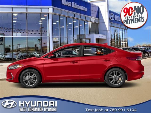 2017 Hyundai Elantra  (Stk: E5388) in Edmonton - Image 1 of 1