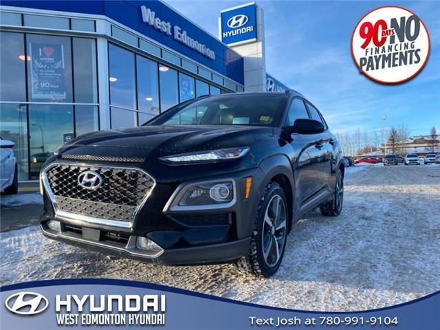 2018 Hyundai Kona 1.6T Ultimate (Stk: E5459) in Edmonton - Image 1 of 28
