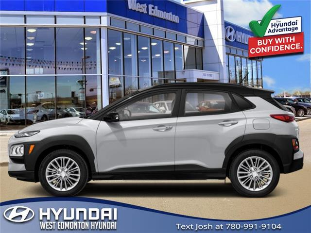 2021 Hyundai Kona 1.6T Urban Edition (Stk: KN16632T) in Edmonton - Image 1 of 1