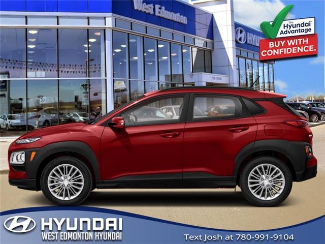2021 Hyundai Kona 1.6T Trend (Stk: KN13063) in Edmonton - Image 1 of 1