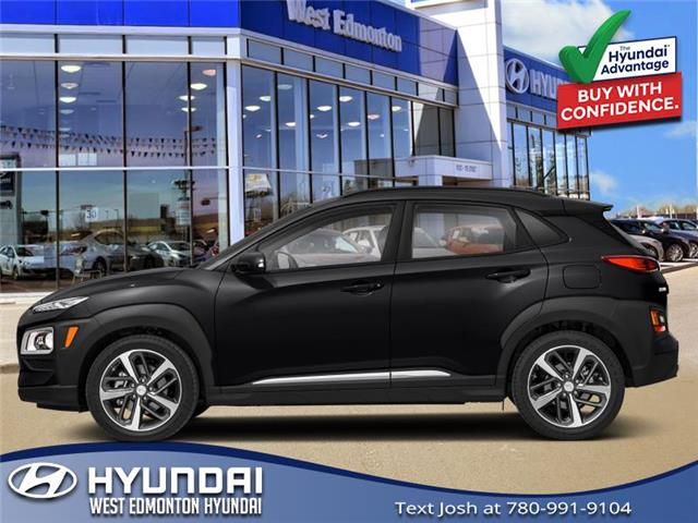 2021 Hyundai Kona 1.6T Ultimate (Stk: KN15200) in Edmonton - Image 1 of 1