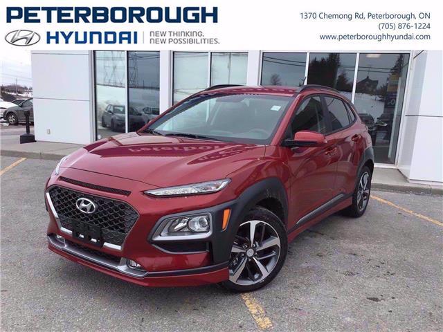 2020 Hyundai Kona 1.6T Trend (Stk: H12340) in Peterborough - Image 1 of 17