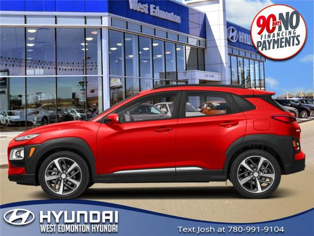 2020 Hyundai Kona 1.6T Ultimate (Stk: KN05867T) in Edmonton - Image 1 of 1