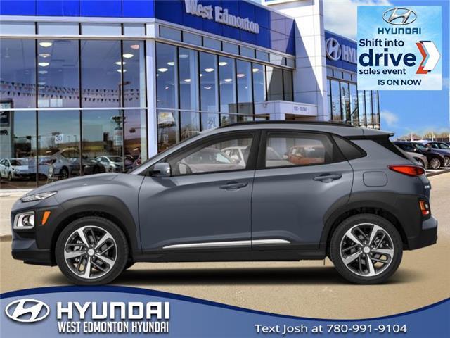 New 2021 Hyundai Kona 1.6T Ultimate  - Edmonton - West Edmonton Hyundai