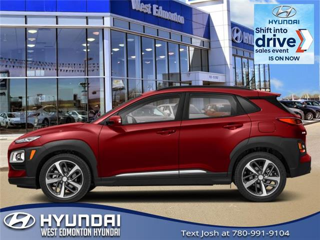 2021 Hyundai Kona 1.6T Ultimate w/Red Colour Pack (Stk: KN14654) in Edmonton - Image 1 of 1