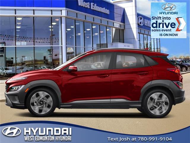 2022 Hyundai Kona 2.0L Preferred (Stk: KN22307) in Edmonton - Image 1 of 1