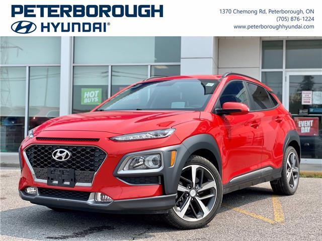 2019 Hyundai Kona 1.6T Trend (Stk: HP0193) in Peterborough - Image 1 of 30