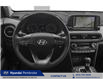 2021 Hyundai Kona 1.6T Ultimate (Stk: 21217) in Pembroke - Image 4 of 9