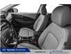 2021 Hyundai Kona 1.6T Ultimate (Stk: 21217) in Pembroke - Image 6 of 9