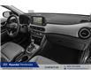 2021 Hyundai Kona 1.6T Ultimate (Stk: 21217) in Pembroke - Image 9 of 9