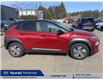 2021 Hyundai Kona EV Preferred w/Two Tone (Stk: 212309) in Pembroke - Image 3 of 8