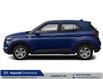 2021 Hyundai Venue Preferred (Stk: 21408) in Pembroke - Image 2 of 8