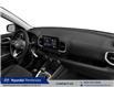 2021 Hyundai Venue Preferred (Stk: 21443) in Pembroke - Image 8 of 8