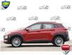 2021 Hyundai Kona 2.0L Preferred (Stk: 157000) in Kitchener - Image 3 of 19