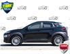 2019 Hyundai Kona 2.0L Luxury (Stk: 60782A) in Kitchener - Image 3 of 20
