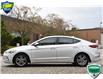 2017 Hyundai Elantra GL (Stk: OP4185X) in Kitchener - Image 3 of 18