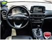 2020 Hyundai Kona 1.6T Ultimate (Stk: FC867A) in Waterloo - Image 17 of 29
