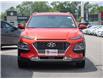 2020 Hyundai Kona 1.6T Ultimate (Stk: 3998X) in Welland - Image 6 of 23