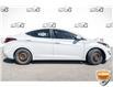 2016 Hyundai Elantra L (Stk: 34304BUXZ) in Barrie - Image 4 of 23