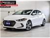 2018 Hyundai Elantra  (Stk: 21J039B) in Kingston - Image 1 of 30